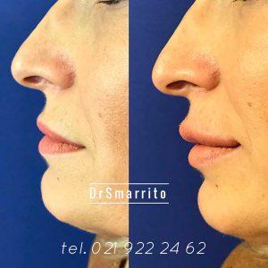Injection des lèvres de profil